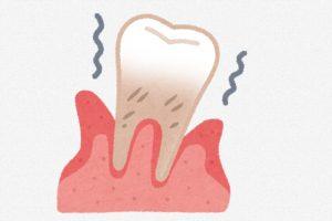 歯周病 乳酸菌