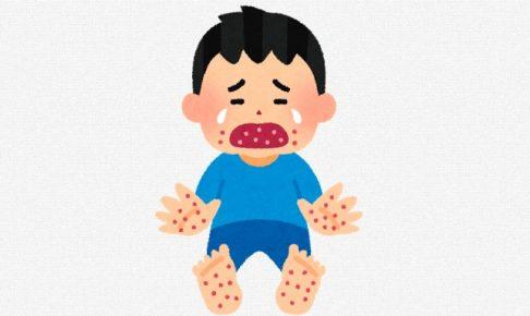 子供 手足口病