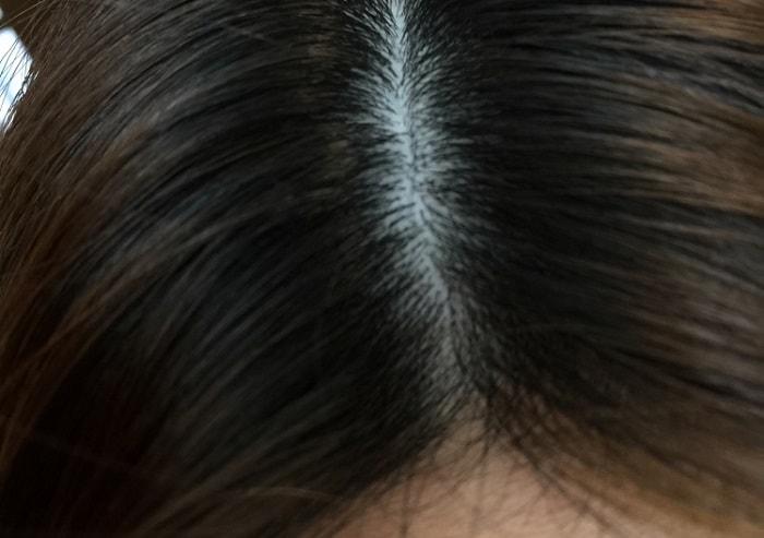頭皮の臭い 原因
